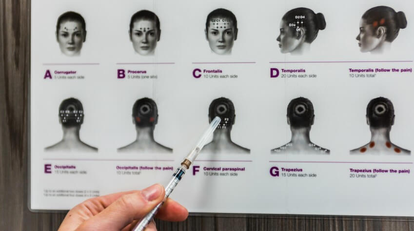 Onabotulinum toxin injections against headaches