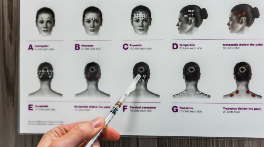 onabotulina toksīna injekcijas pret galvassāpēm